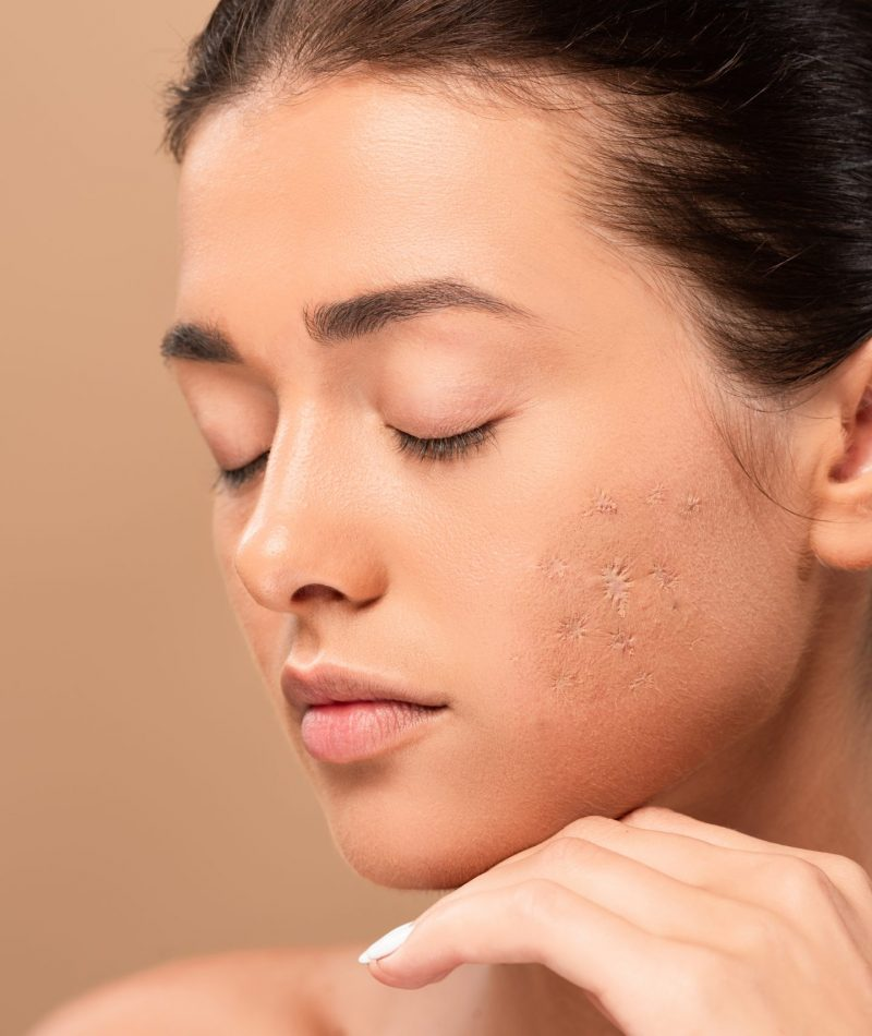 Scars | Skin Rejuvenation | Draper UT - BioRestoration